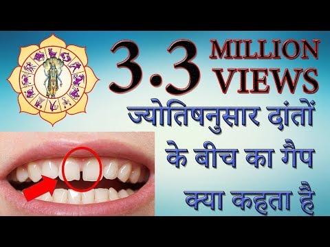 ज्योतिषनुसार दांतों के बीच का गैप क्या कहता है