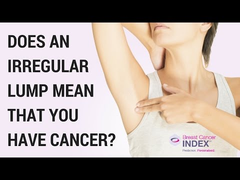 Does an Irregular Lump Mean That You Have Breast Cancer?