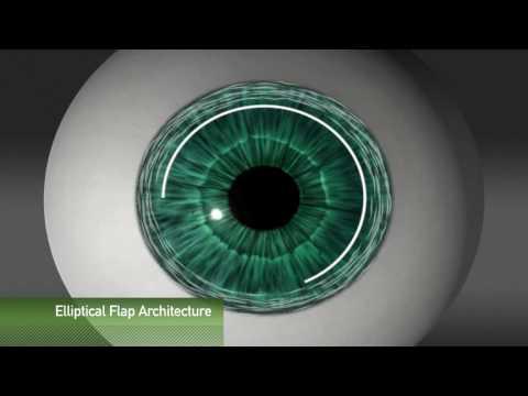 Animación de creación de Flap para cirugía refractiva con laser Femtosegundo Intralase