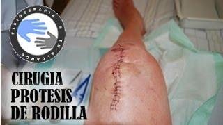 Protesis de rodilla, operacion o cirugia