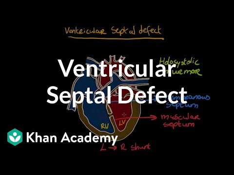 Xxx Mp4 Ventricular Septal Defect Circulatory System And Disease NCLEX RN Khan Academy 3gp Sex