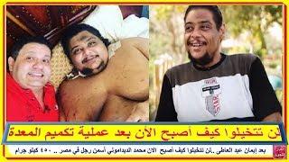 بعد #إيمان_عبد_العاطى ..لن تتخيلوا كيف أصبح  الان #محمد_الديداموني #أسمن_رجل_في_مصر .. 450 كيلو جرام