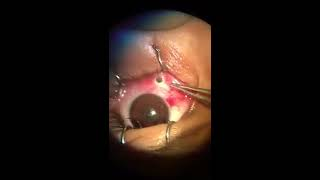 OMG!!!!! Pencil in Human eye