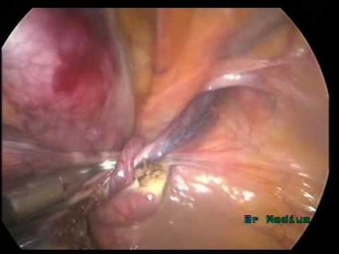 Lap Orchiectomy