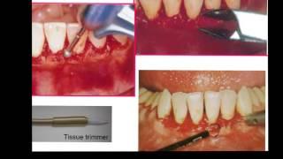 Gingivectomy & Gingivoplasty