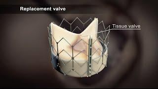 TAVI (Transcatheter Aortic Valve Implantation)