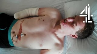 Lost Limbs & Half of Face to Toxic Shock Syndrome | The Extraordinary Case of Alex Lewis