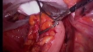 NOSE - Sigmoidectomía laparoscópica asistida por vía vaginal (2 casos) - Laparoscopiabilbao.com