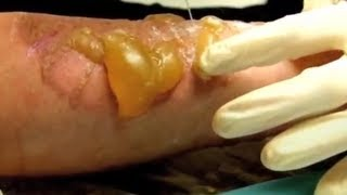 Hot Fat Burns - Bizarre ER