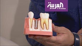صباح العربية: عرض حي وقصير لطريقة زراعة الأسنان