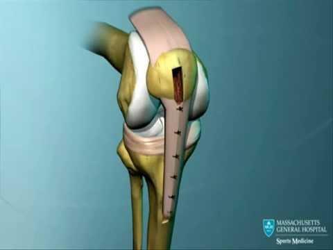 Anatomia do joelho e reconstrução de LCA