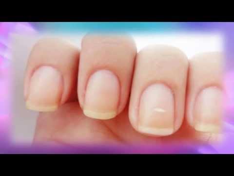 Porque aparecen manchas blancas en las uñas