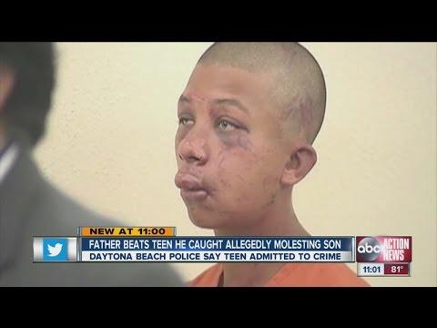 Xxx Mp4 Father Beats Teen He Caught Allegedly Molesting Son 3gp Sex