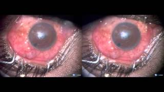 Failed glaucoma surgery for angle recession- resurgery