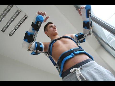 2 Long Arm Casts in shoulder spica brace