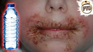 10 Weirdest Things People Are Allergic To