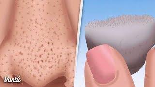 Elimina los puntos negros de tu nariz en 3 minutos con este remedio