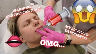 I GOT LIP FILLER!!! MY EXPERIENCE | VLOG