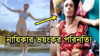 যৌবনে সেক্সি হয়ে লাখো পুরুষের হৃদয়ে ঝড় তোলা নায়িকার ভয়াবহ পরিণতি! | Bangla Latest News 2017