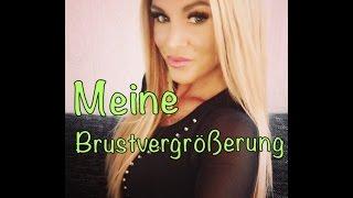 Meine Brustvergrösserung / Breast Implant  German