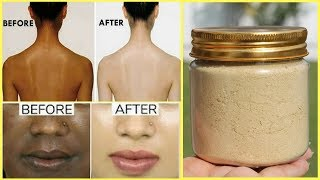 3 Day Full Body Whitening Challenge | Get 100% Fair, Spotless and Glowing Skin Naturally