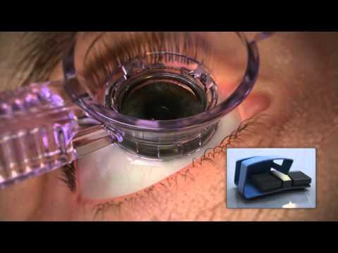 Como funciona el Laser Femtosegundos WaveLight FS200