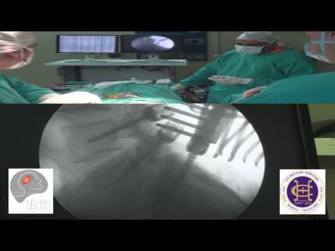 Artrodesis lumbosacra con tornillos pediculares.wmv