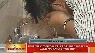 BT: Pimples o tigyawat, problema ng ilan lalo na kapag tag-init
