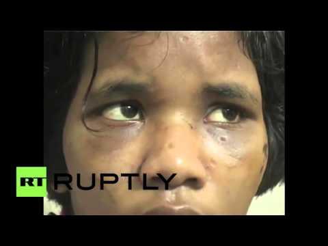 Xxx Mp4 India Tortured 14 Year Old Girl Found Inside Closet Near Delhi 3gp Sex