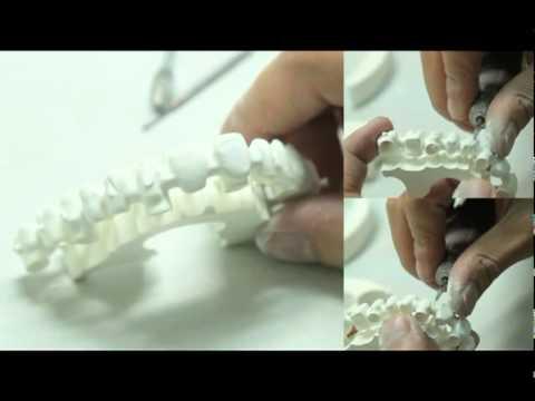Xxx Mp4 Well Dental Laboratory IWell® System 3gp Sex