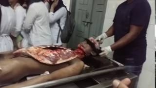 How to postmortem in dead body only 9 second??