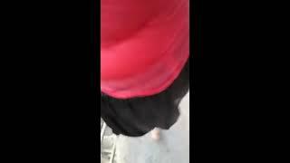 Linda amputada descendo escada de cascata