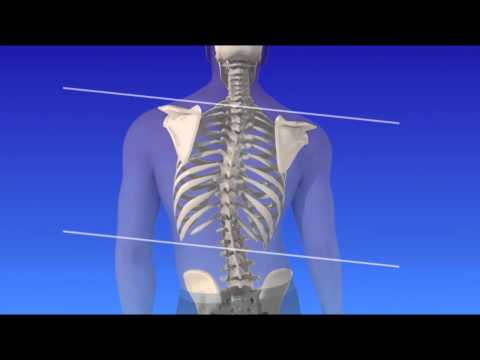 Scoliosis Curvature of the Spine