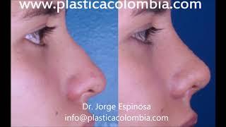 Rinoplastia - Casos reales de cirugía de nariz antes y después - Nariz lateral