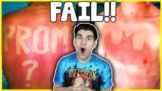 Most Epic And Painful Sunburns! (Hilarious Fails)