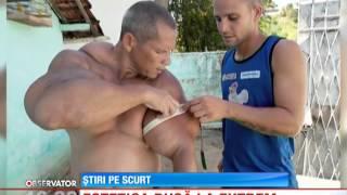 Un brazilian şi-a construit braţele identice cu cele ale lui Popeye marinarul