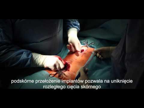 Operacyjne leczenie skoliozy dzieciecej Rozwórką Rosnącą