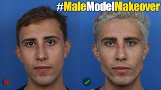 NYC Male Model Makeover with Facial Filler by Dr. Steinbrech #6