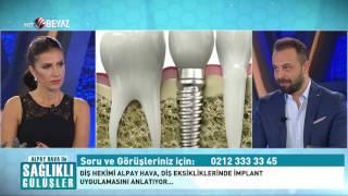 Alpay Hava ile Sağlıklı Gülüşler 7. Bölüm - Beyaz TV