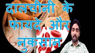 दालचीनी के फायदे और नुकसान | Side Effects of Cinnamon in hindi
