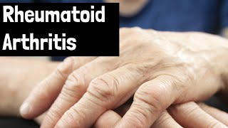 How to treat rheumatoid arthritis and/or autoimmune disorders
