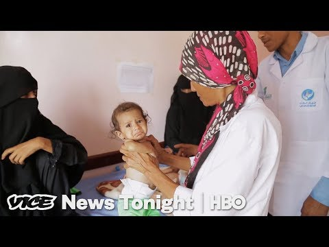 Xxx Mp4 One Doctor's Desperate Attempt To Save Yemen 39 S Starving Children HBO 3gp Sex