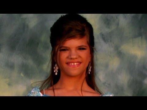 Young Girl Cannot Feel Pain Battles Rare Medical Condition CIPA Good Morning America ABC News