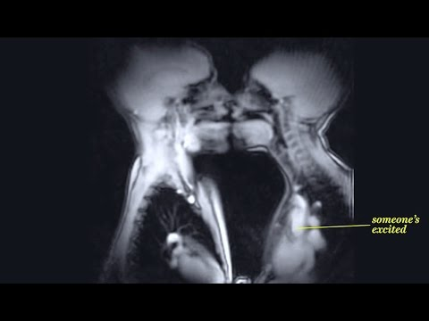 Xxx Mp4 MRI Shows What Sex Looks Like From The INSIDE What S Trending Now 3gp Sex