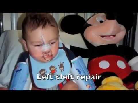 Copy of Cleft Lip and Palate   Nicholas' Amazing Journey