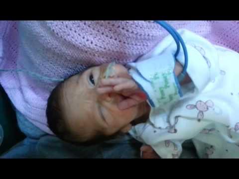 skyla the premature baby 29 weeks