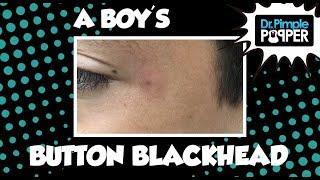 A Boy's Button Blackhead