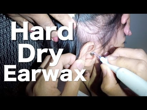 Xxx Mp4 Brave Little Girl S Hard Dry Earwax Removal 3gp Sex