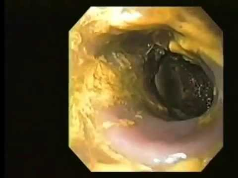 Colonoscopy & Colon Cleanse Body Detox Natural Bowel Blood Cleansing Kidney Liver Detoxification