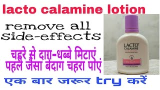 Lacto Calamine Lotion review hindi  | Best For Remove Acne Pimple Darkspots Side Effects